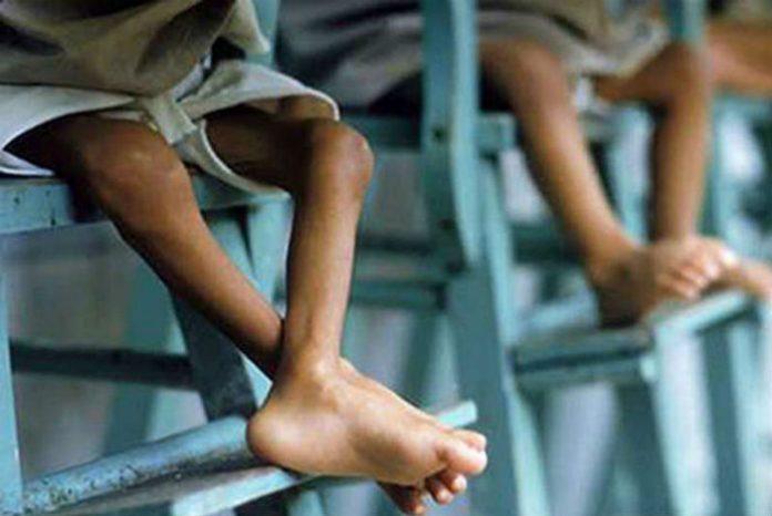 El 70% de la población venezolana presenta desnutrición de leve a moderada