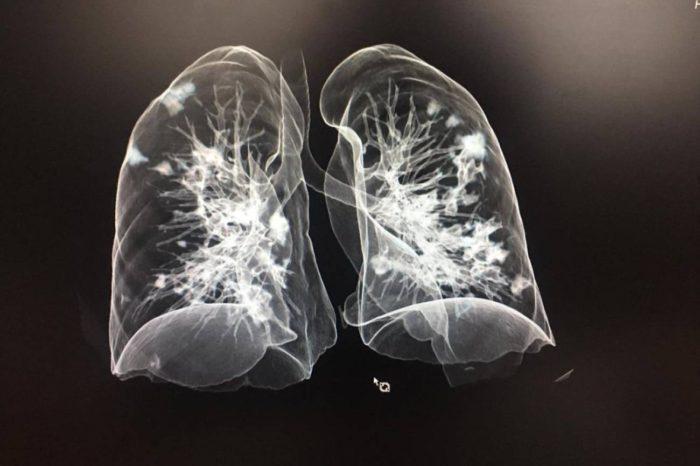 las lesiones post covid-19 en los pulmones - primer informe